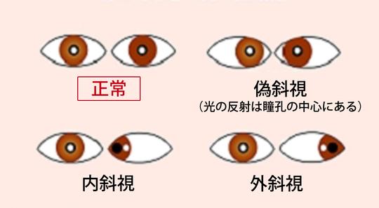 斜視 治し 方 内 斜視の原因・治療・手術…医師が伝える斜視手術の実際 [目の病気]